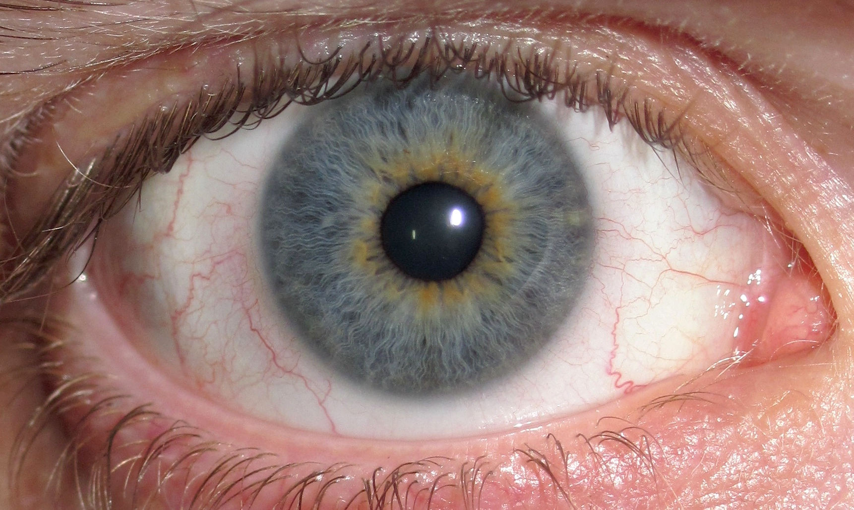 Eye color wikipedia eye central heterochromia crop and lighterg nvjuhfo Image collections