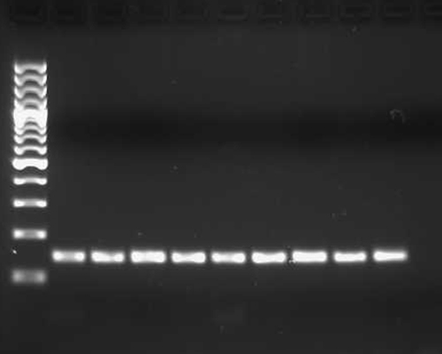 DNA-elektrofores.