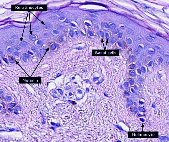 Keratinocyte