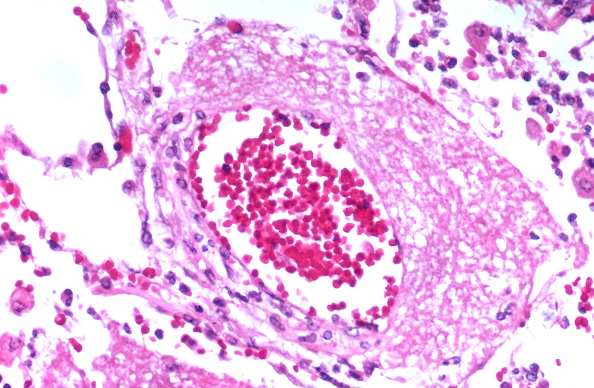 File:Pneumocystis jiroveci infection; blood vessel ...