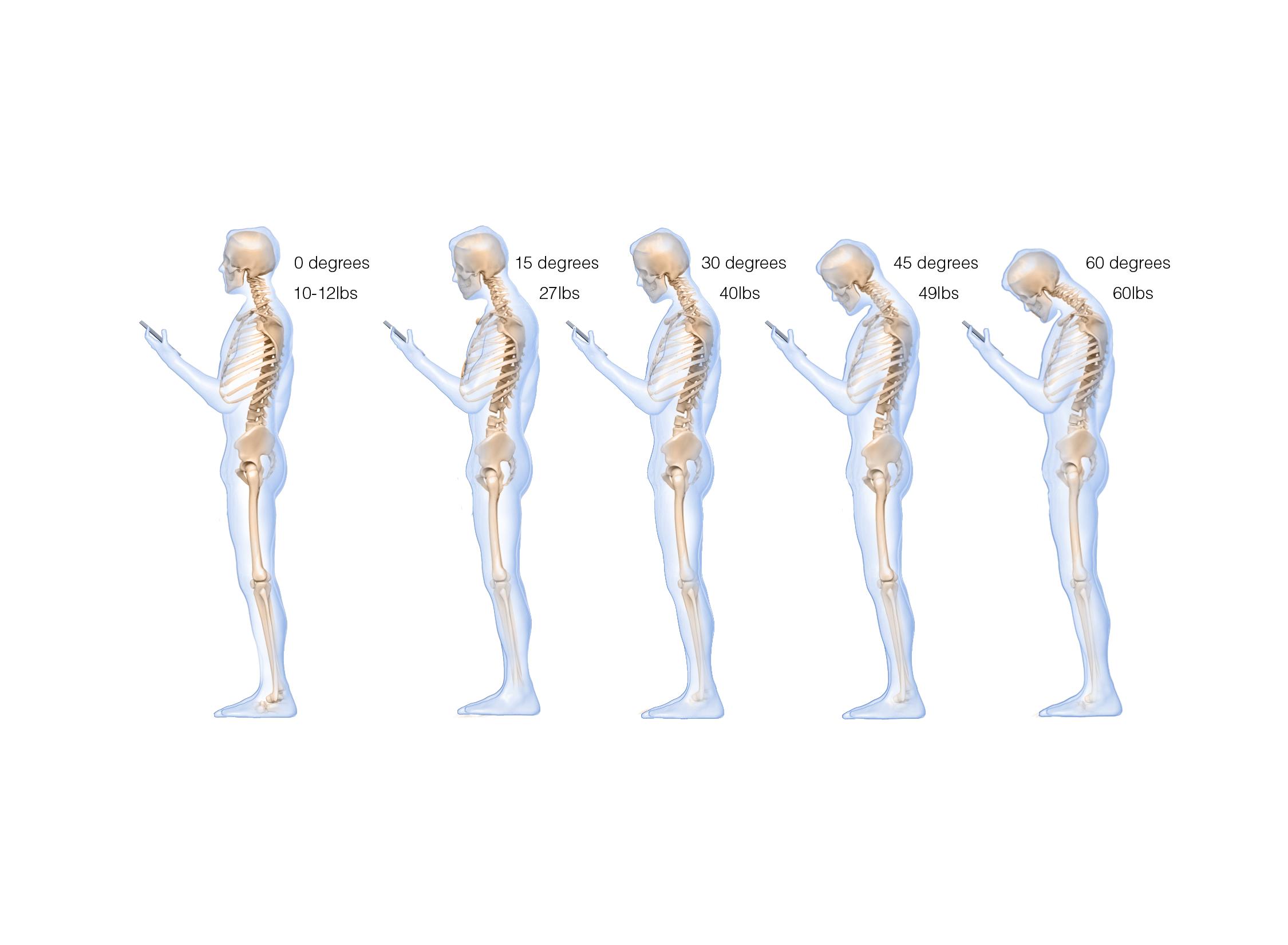 Le syndrome du ''cou texto'' | Ostéopathie La Prairie