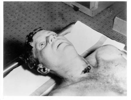A_picture_of_President_Kennedy's_head_an