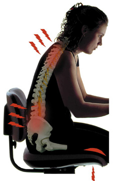 Image showing how bad posture can create points of stress on the back.
