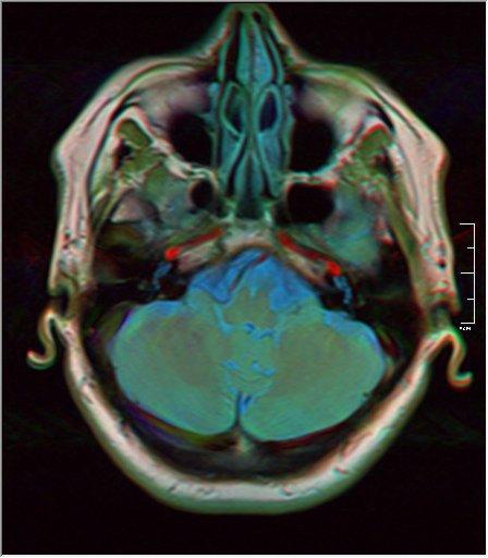 Brain MRI 0143 16.jpg