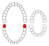 ファイル:Mandibular third molars01-01-06.png