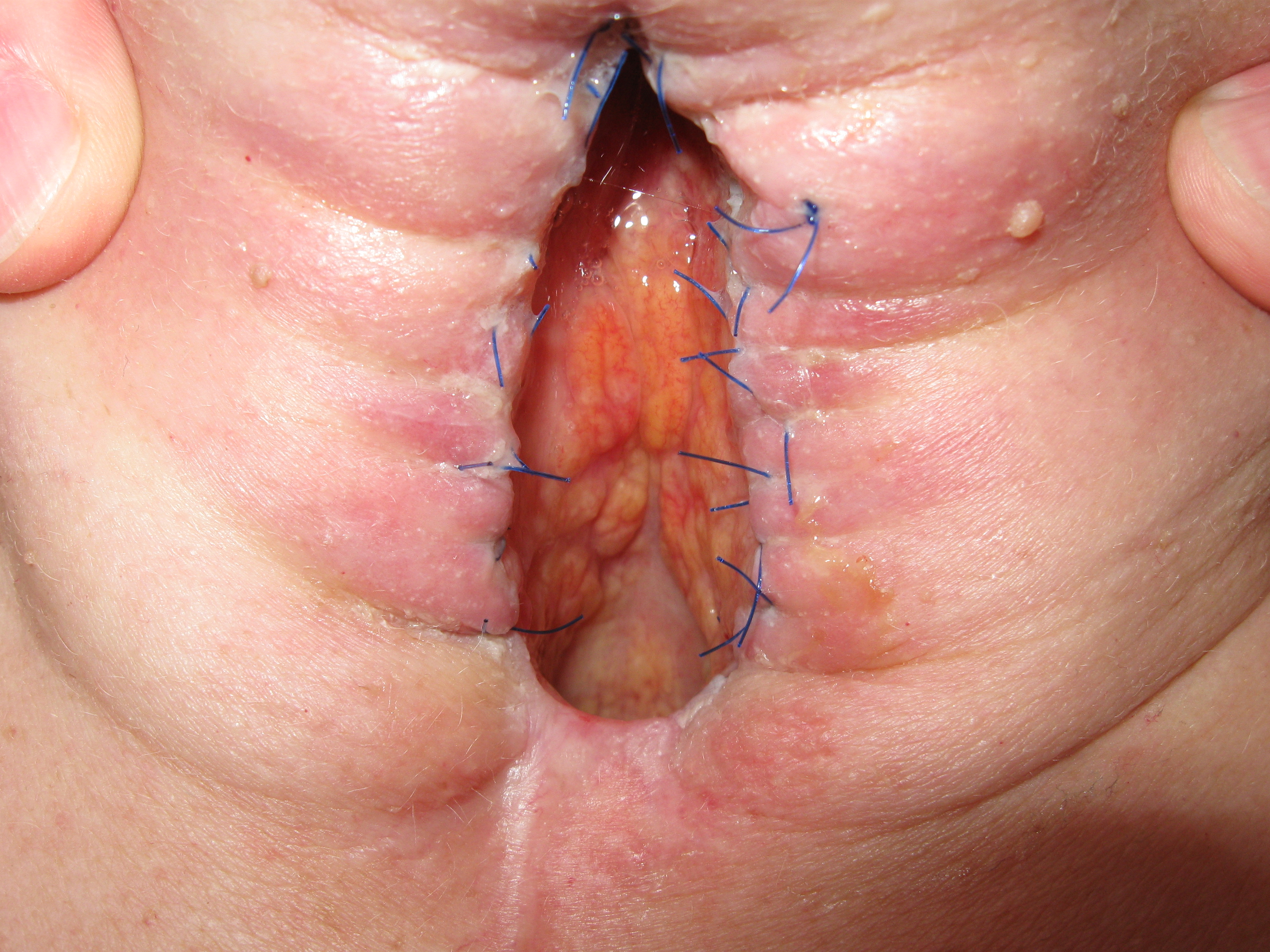 deep anal fissure