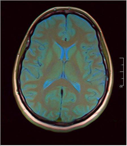 Brain MRI 0053 09.jpg