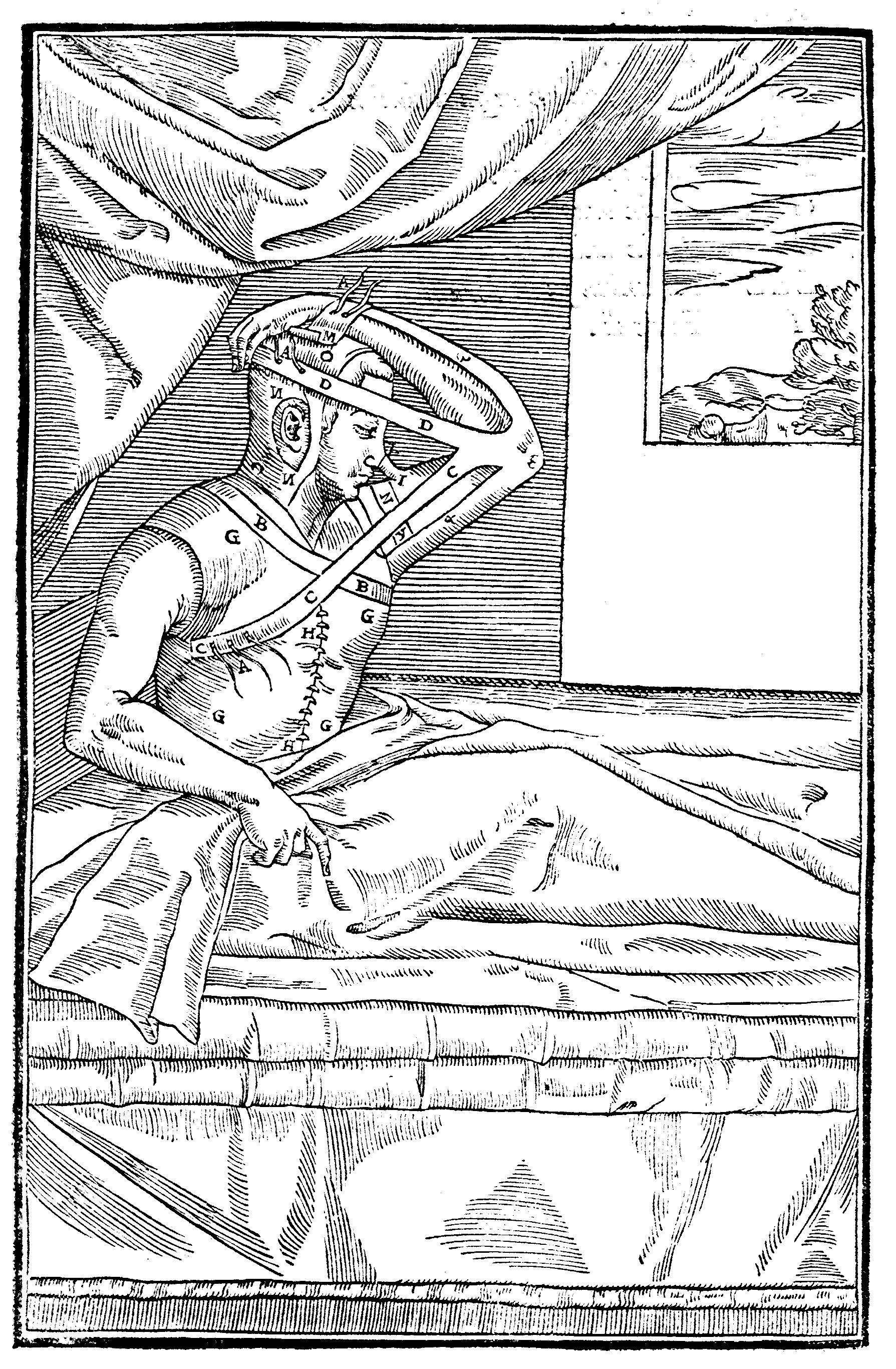 An early technique for grafting tissue to surgically correct a nose defect.
