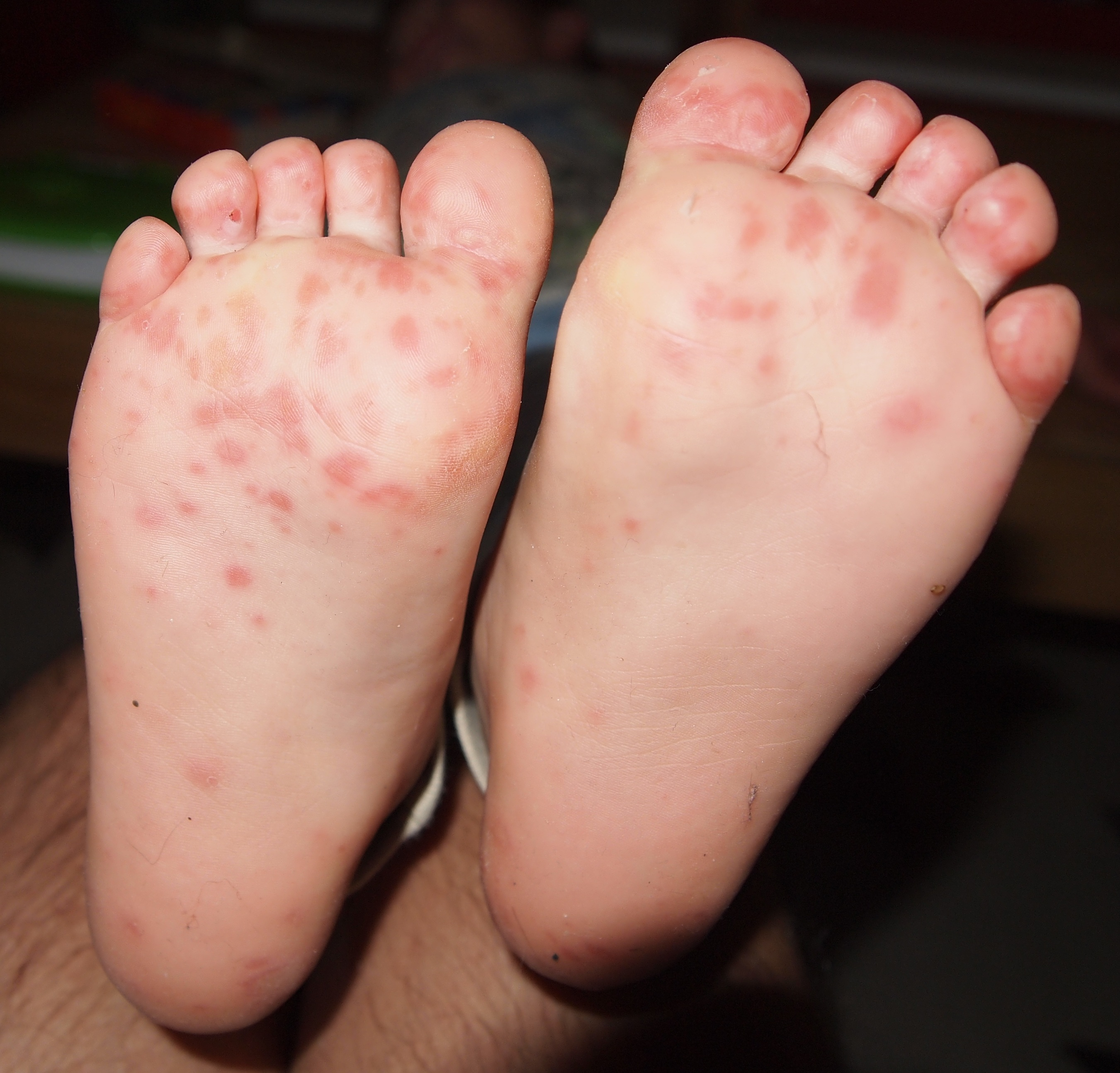 Foot hand mouth pictures and disease