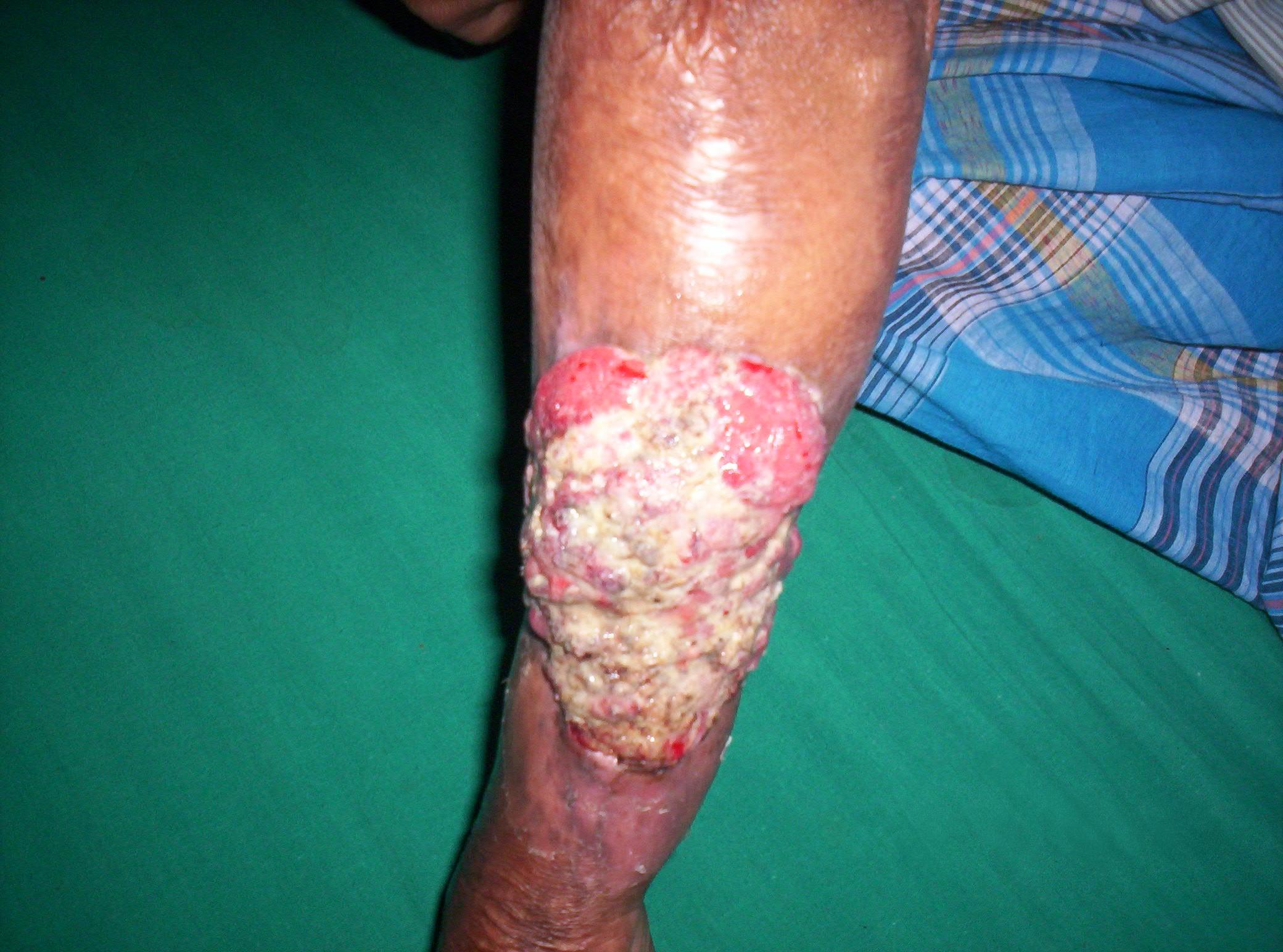 Description Marjolin ulcer.JPG