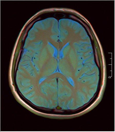 Brain MRI 0249 08.jpg