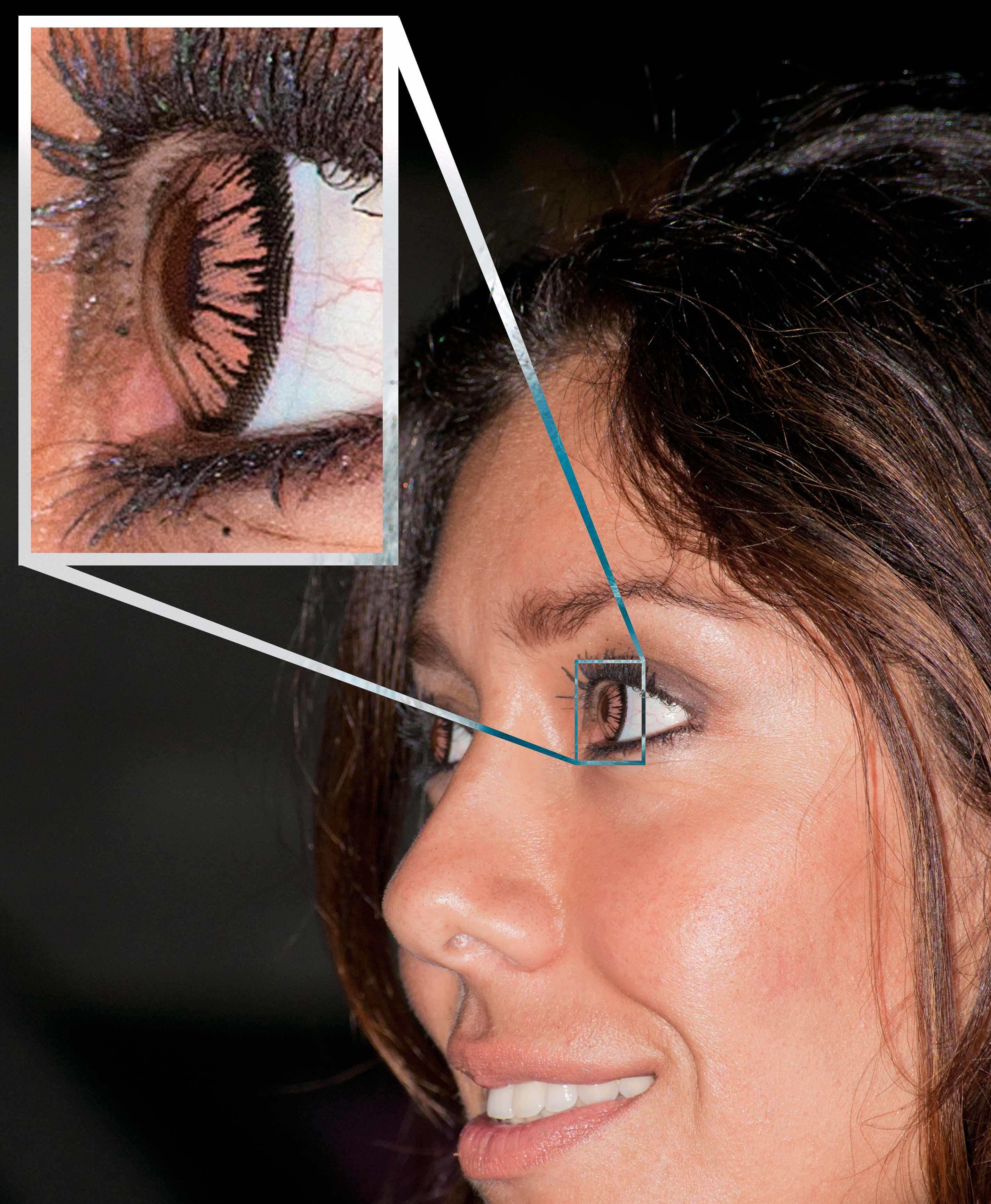 Ceguera nocturna de una sola vez en un ojo - Cuidado de los Ojos