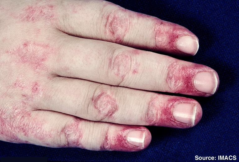 File:Dermatomyositis7.jpg