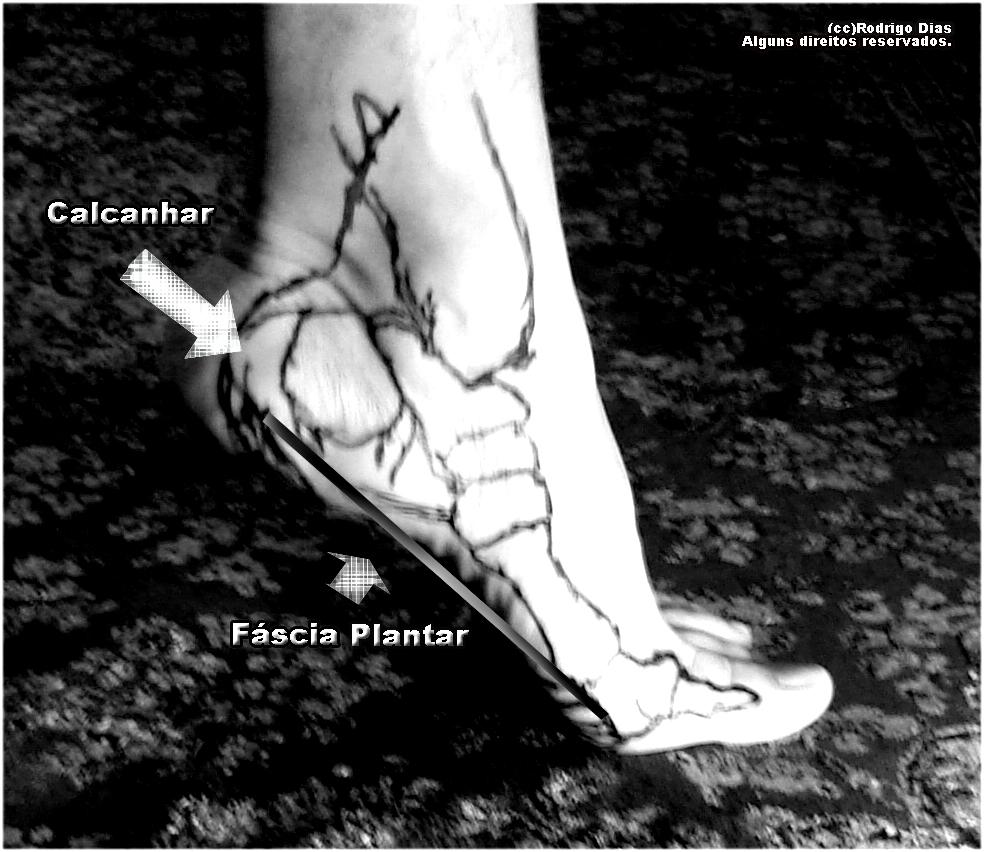 como curar hematoma no tornozelo