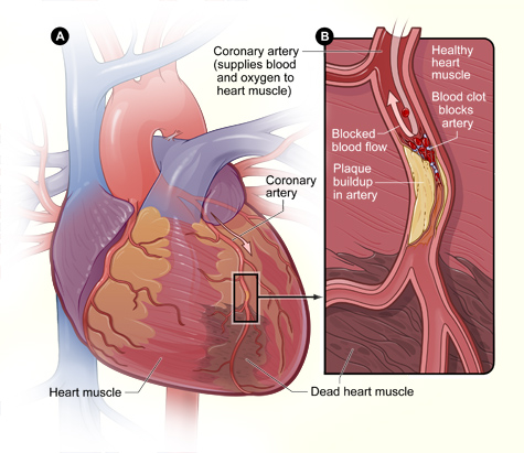 Ursache des Herzinfarkts