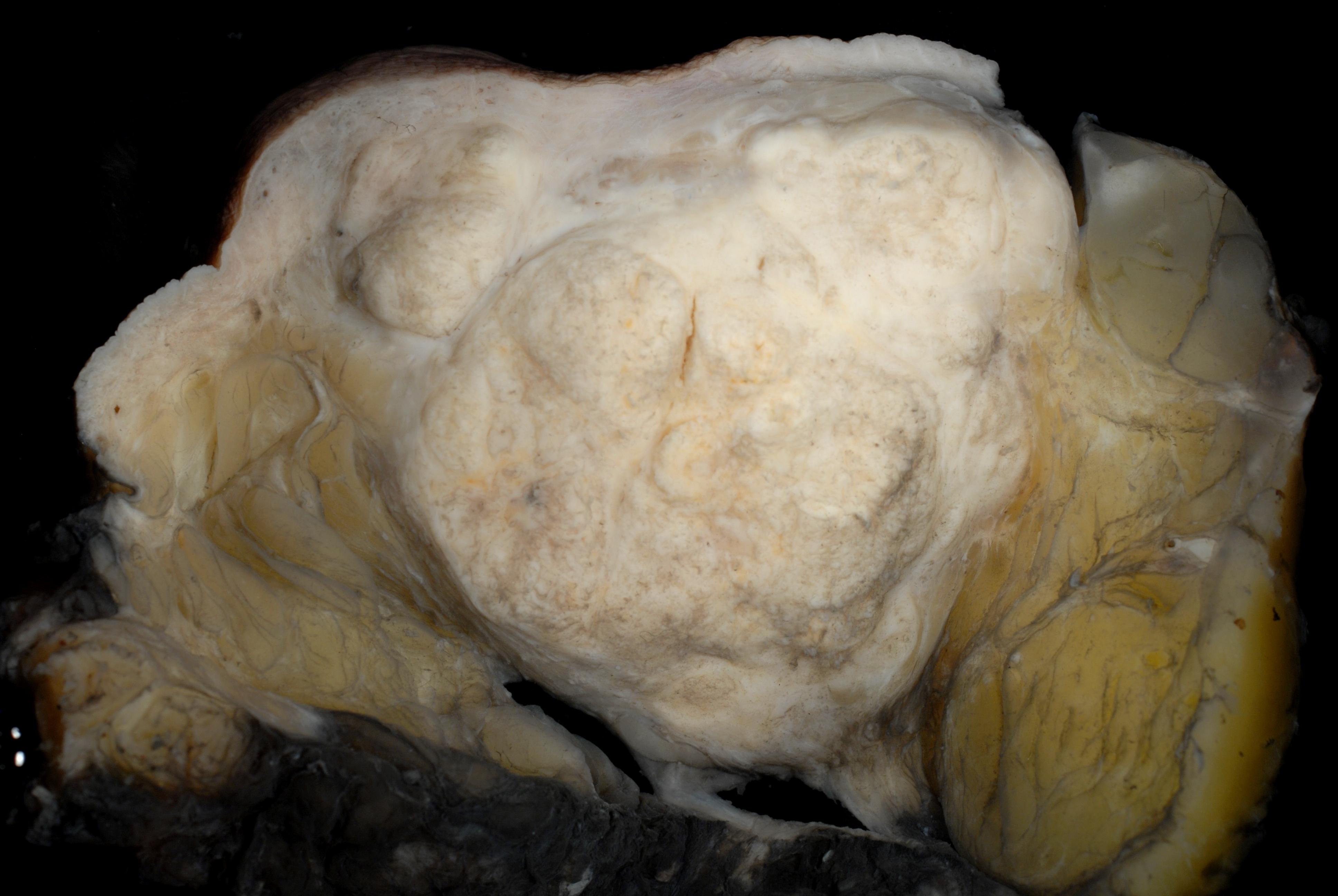 File Medullary Carcinoma Of The Breast Mastectomy Jpg