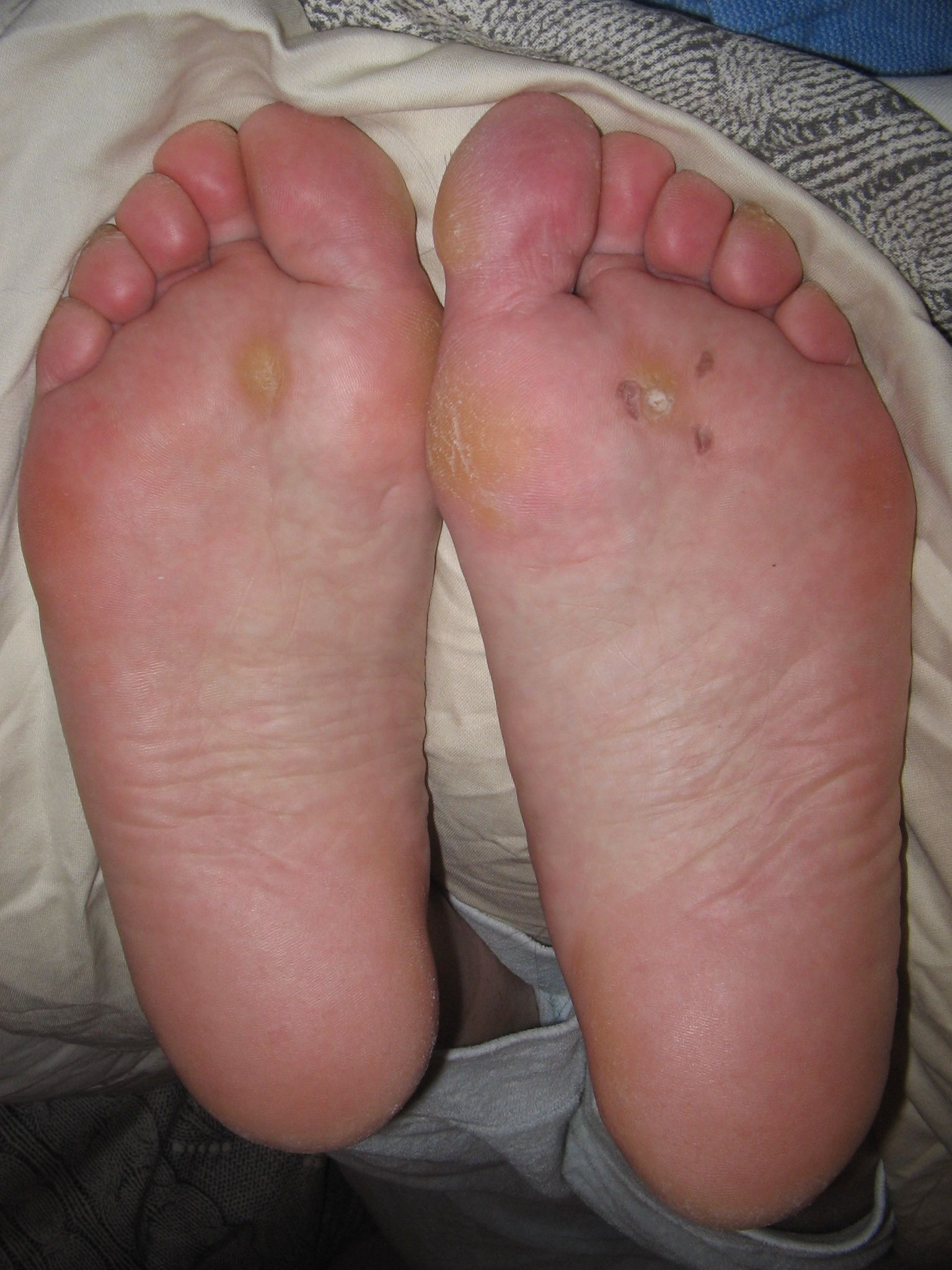 Wart on foot pregnancy. Helminth suffix meaning - Wart on foot and pregnancy