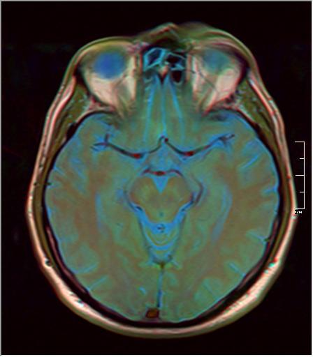 Brain MRI 293 12.png