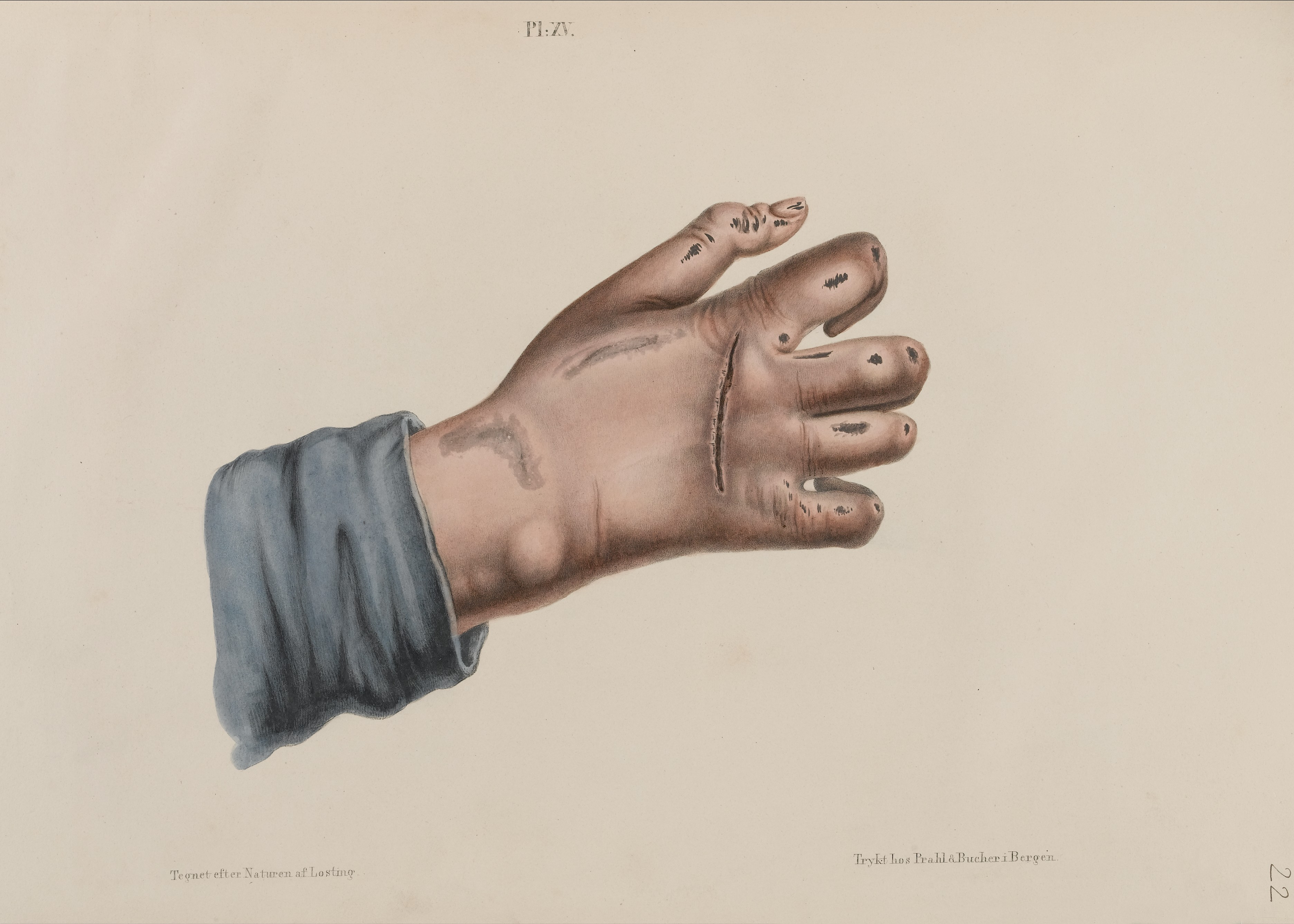 File:Hand showing leprosy Wellcome L0040719.jpg - Wikimedia Commons