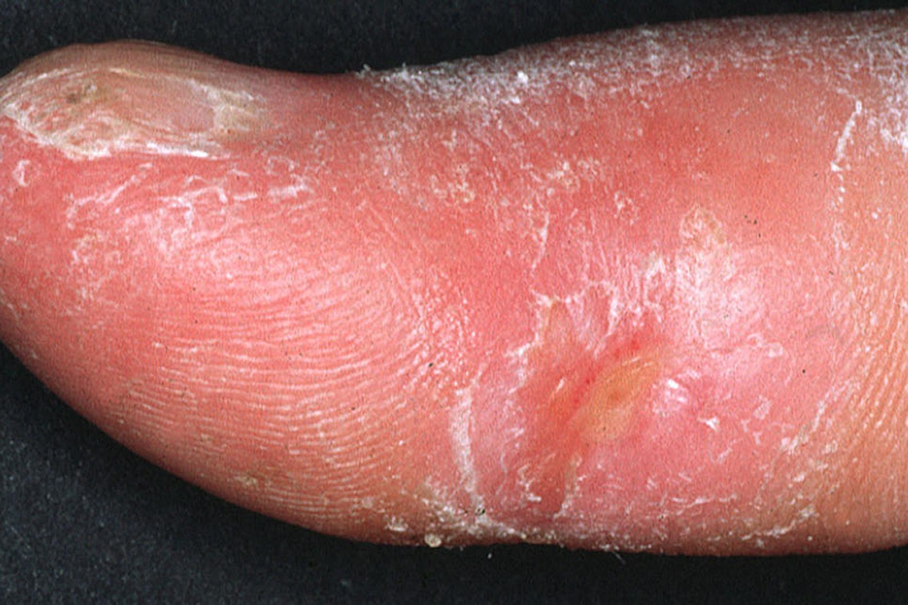 infección cutánea por isquemia
