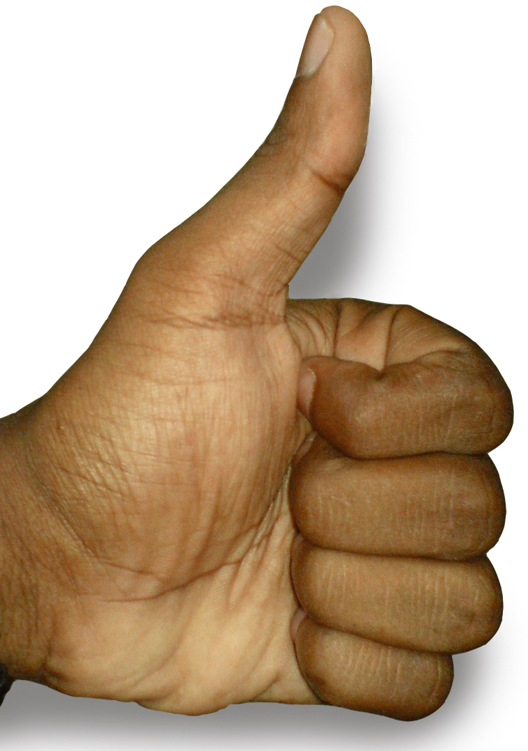 The Thumbs-up position.jpg