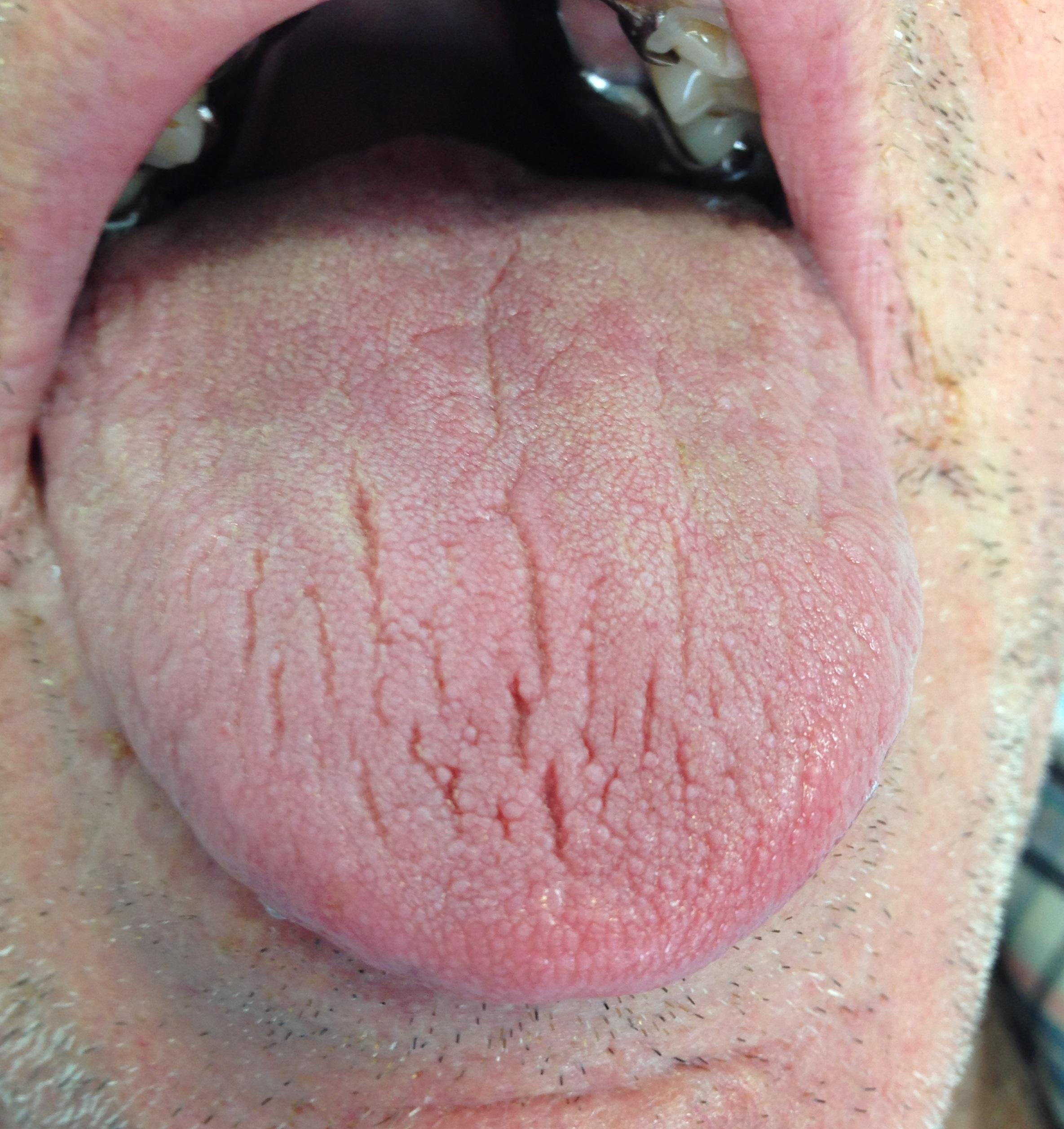 Hipertensión y boca seca