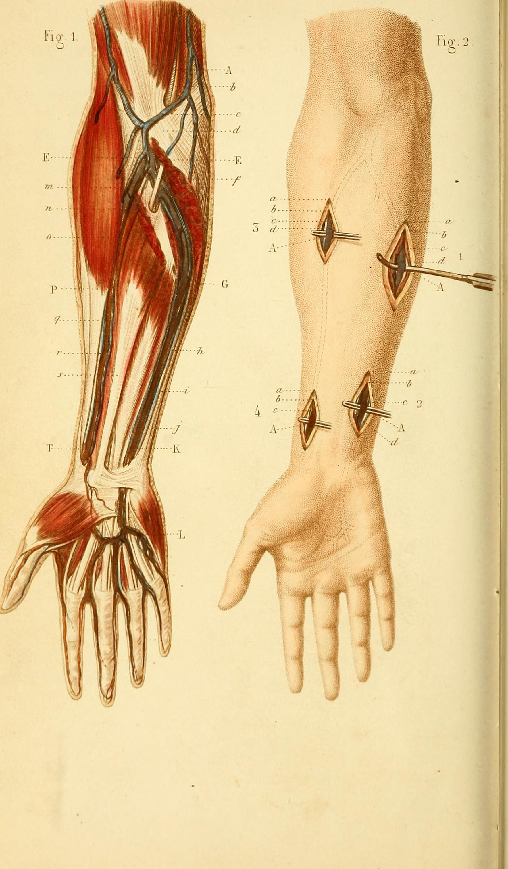 Filea Text Book Of Operative Surgery And Surgical Anatomy 1878
