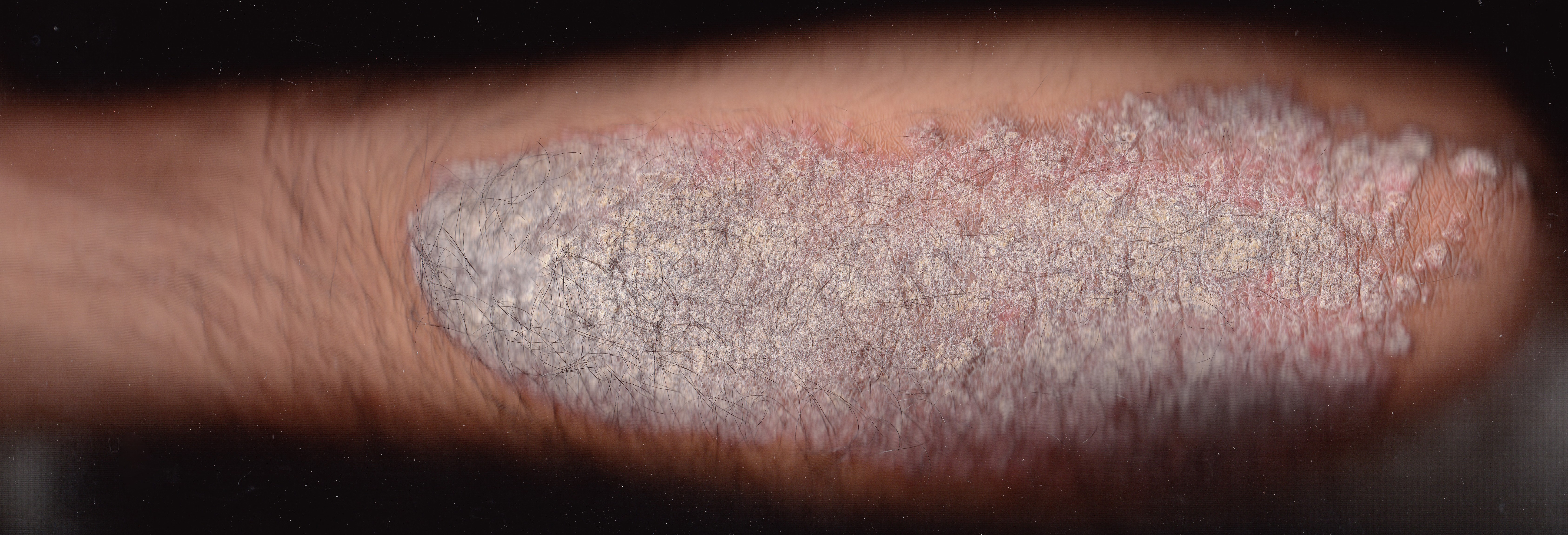 best OTC psoriasis treatment