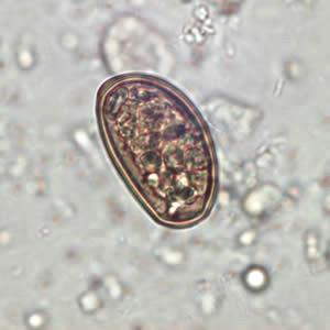 English: Dicrocoelium dendriticum egg in an un...