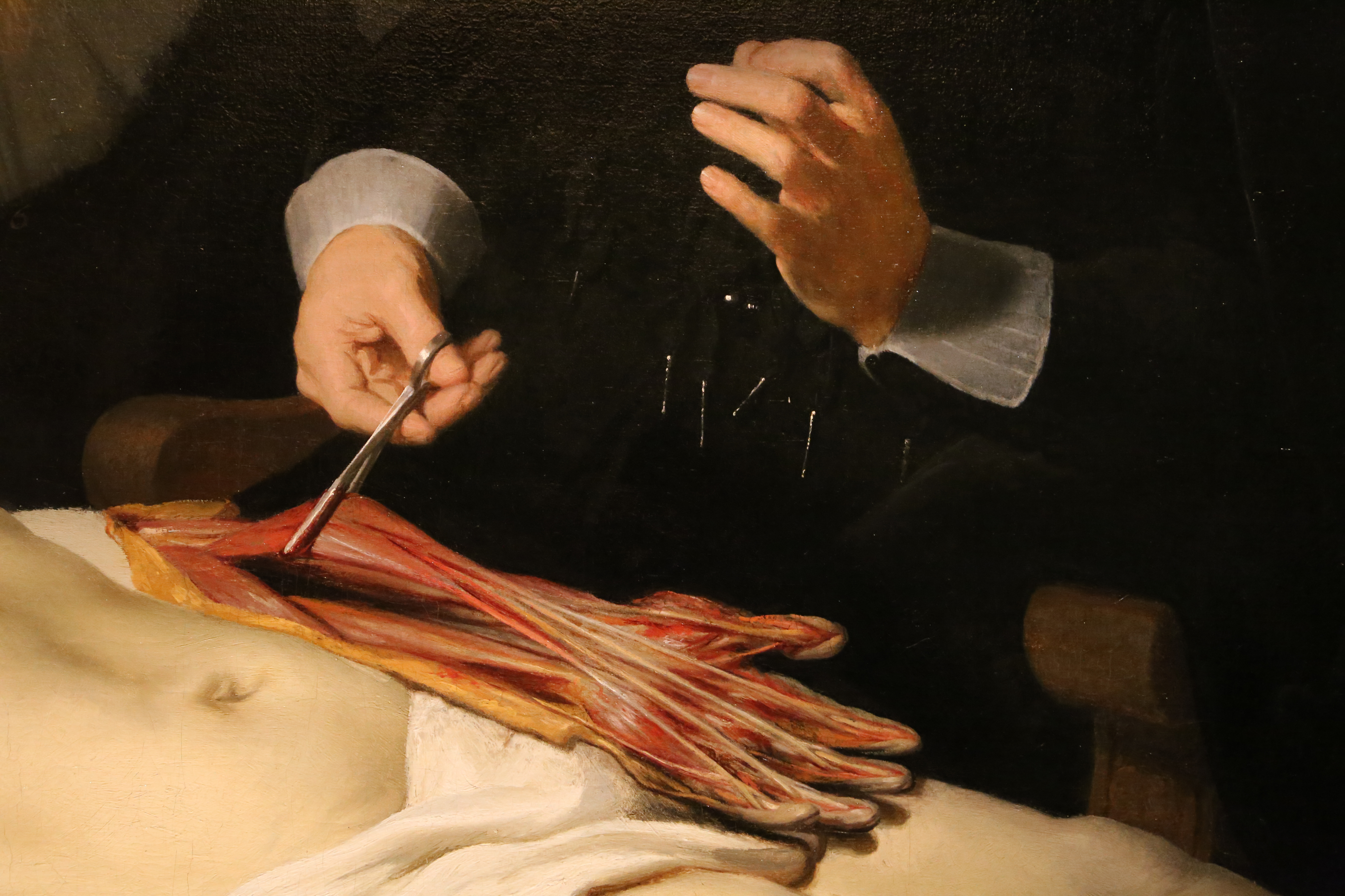 Lujoso Anatomía De Brest Imágenes - Anatomía de Las Imágenesdel ...