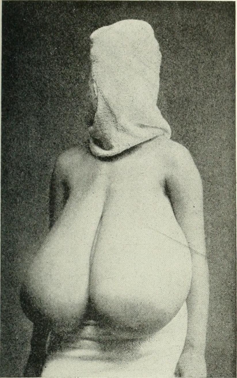 virginal breast hypertrophy have