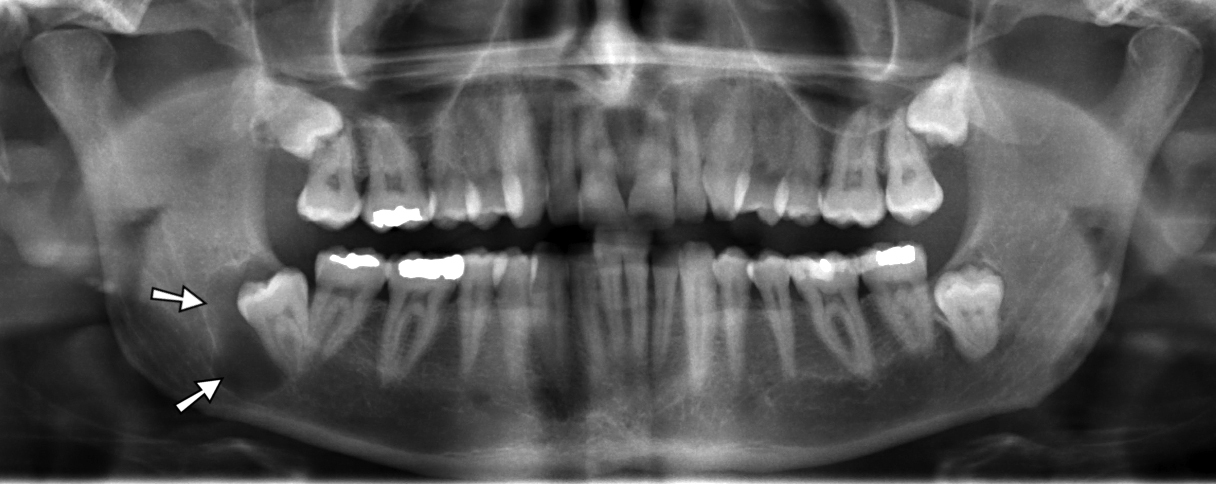 Cyst in Jaw X-ray