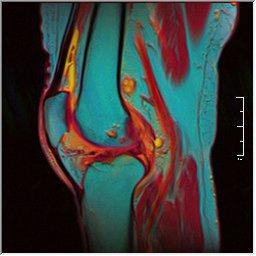 Knee MRI 0025 11 pdfs t1 t2 59f.jpg