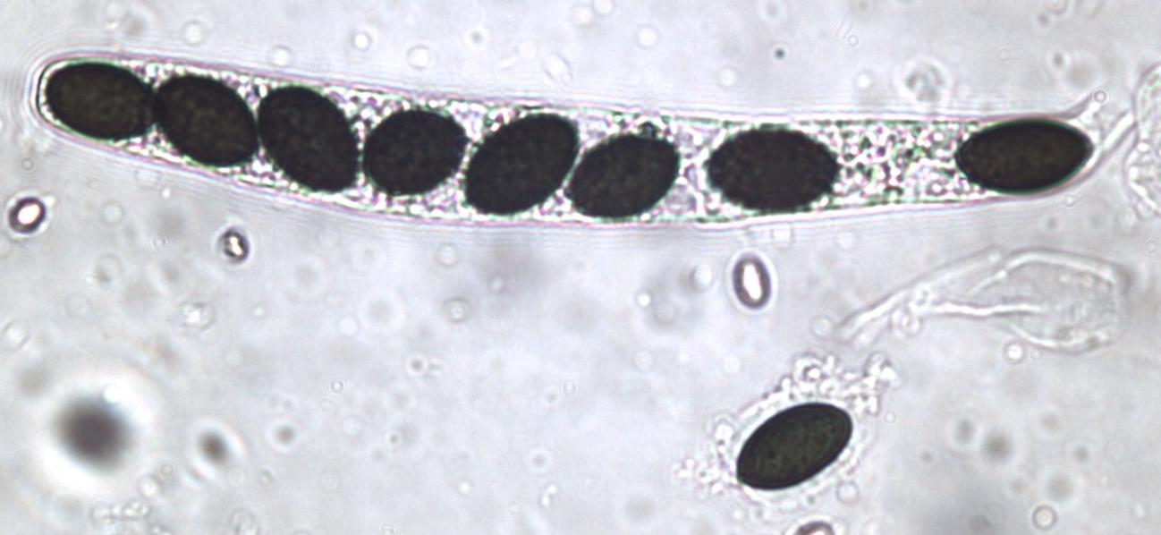 Sordaria fimicola ascus plus ascospore.jpg