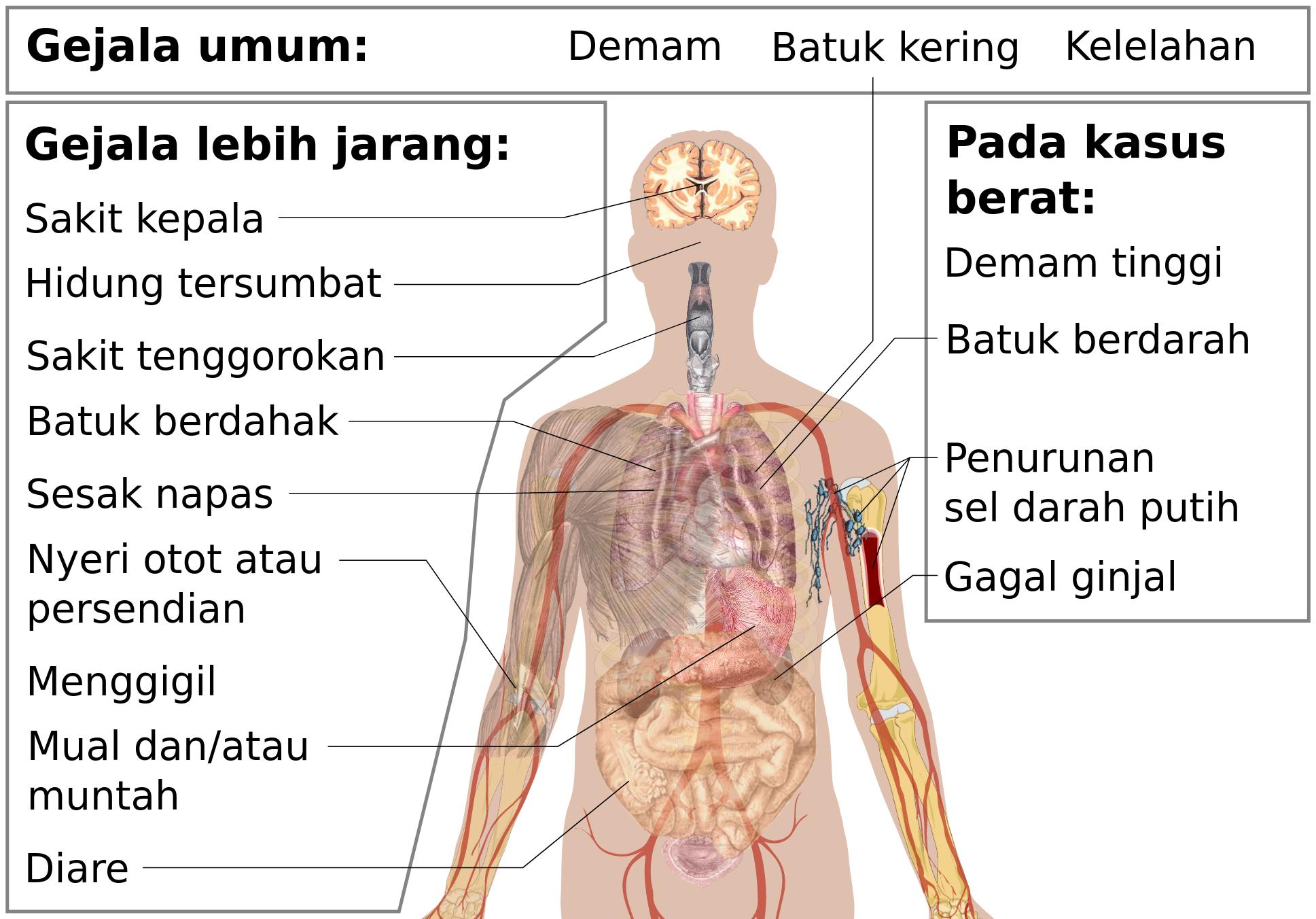 Penyakit Koronavirus 2019 Wikipedia Bahasa Indonesia Ensiklopedia Bebas