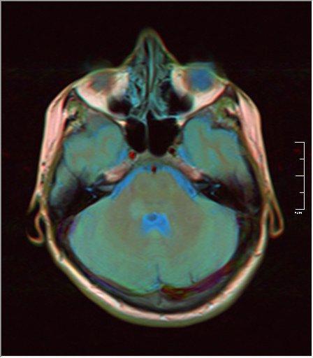 Brain MRI 0146 15.jpg