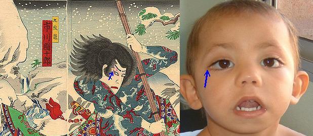 Filecomparison Of Kabuki Syndrome And Real Kabuki Makeupjpg - Kabuki-makeup