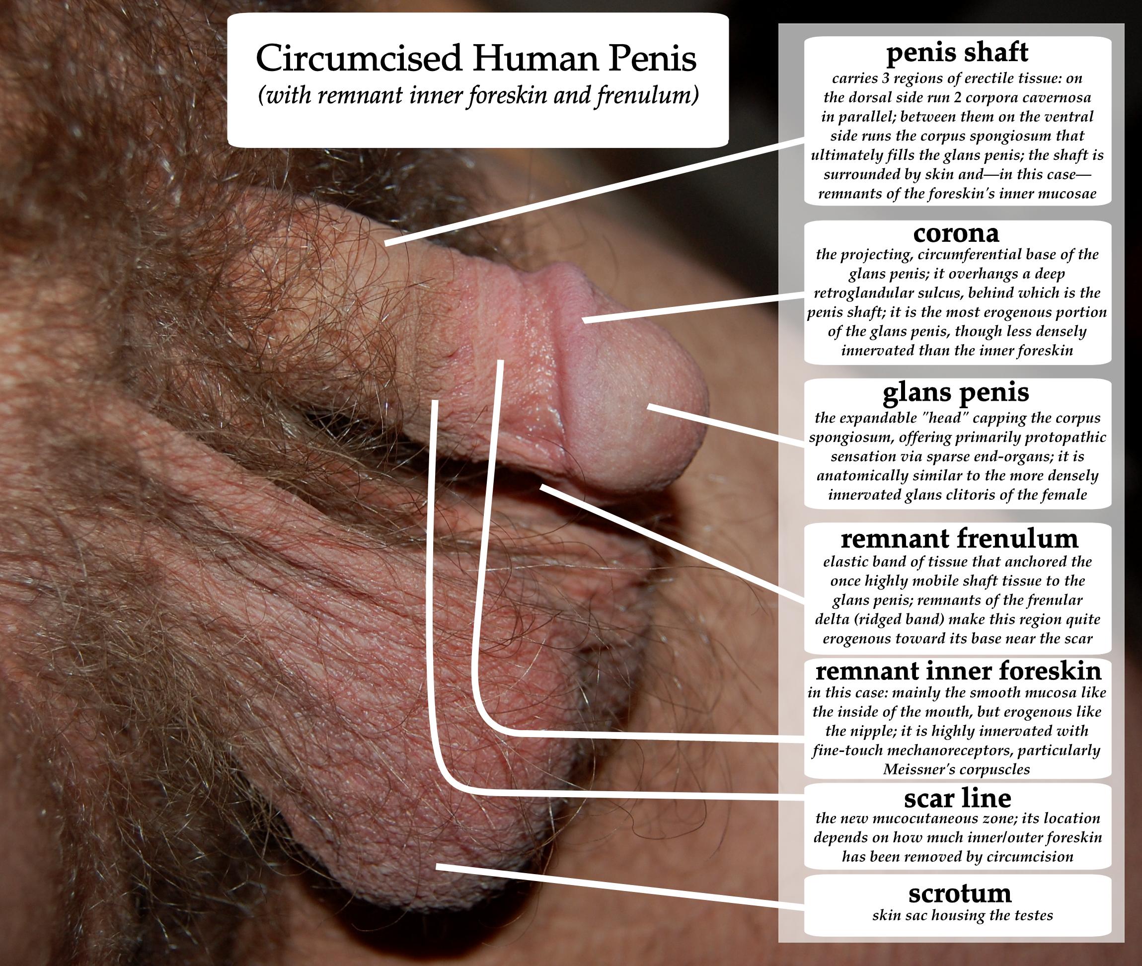 Penile Hypospadias Reconstruction