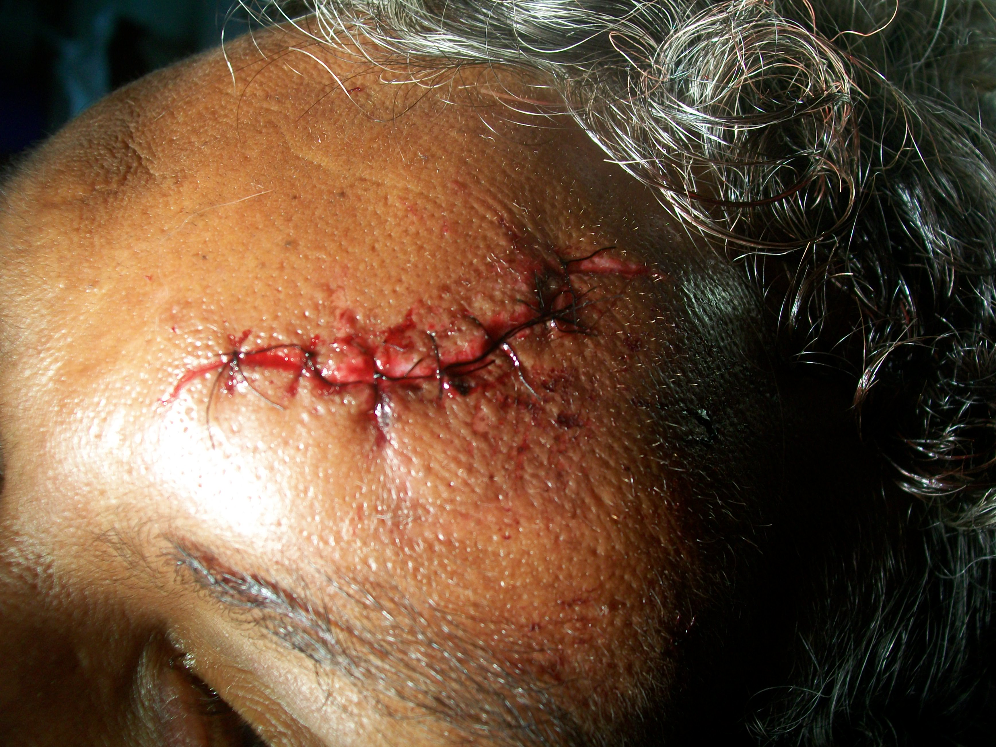 A person with an open head injury