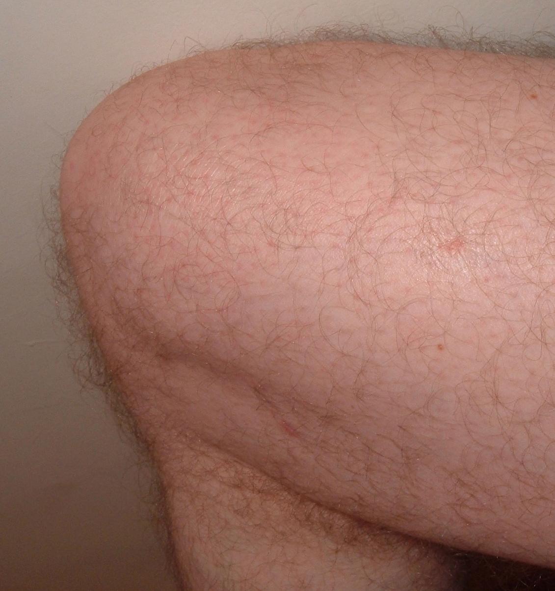 Knee.agr.jpg