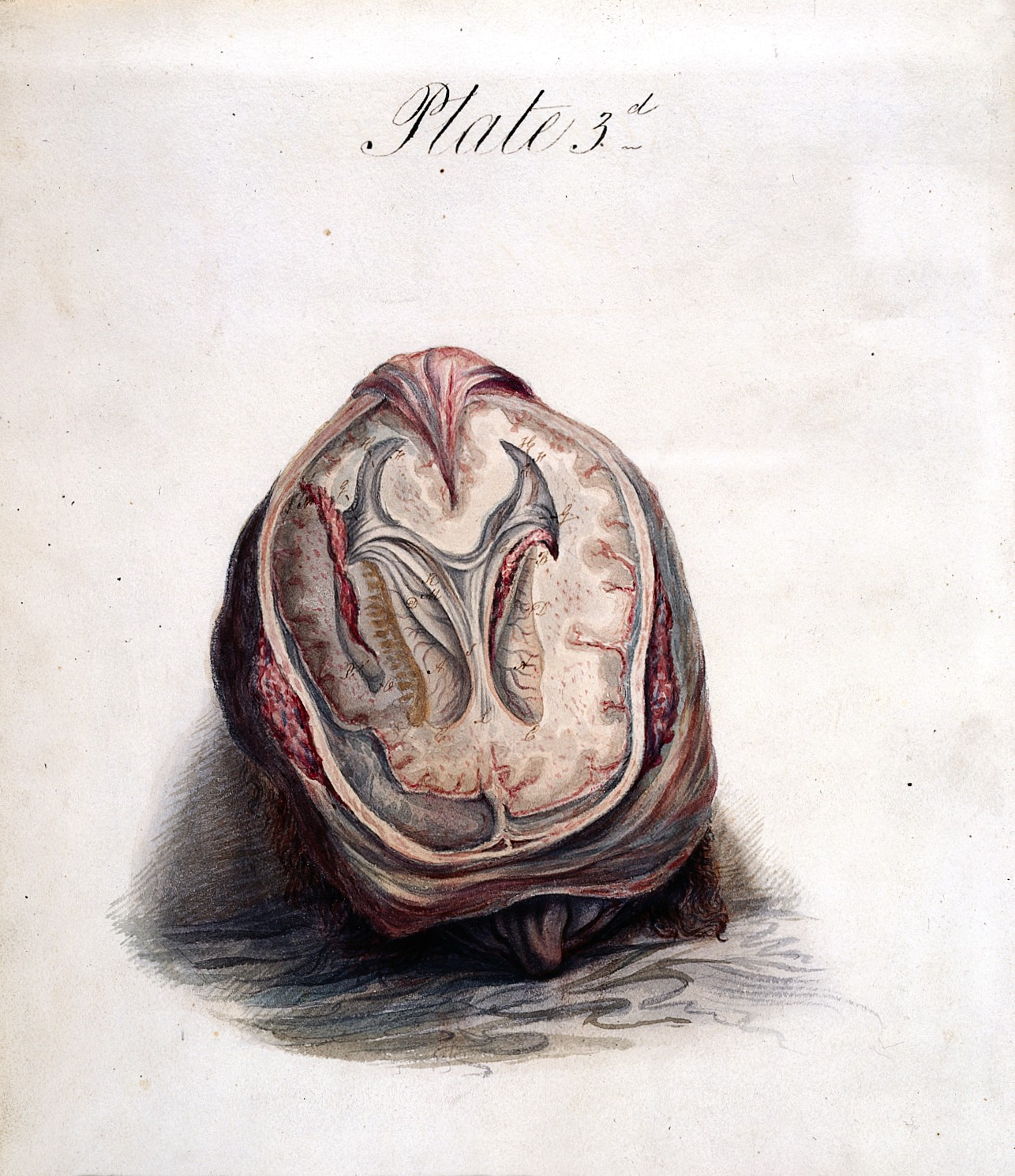 File:Sir Charles Bell, The anatomy of the brain Wellcome L0019324 ...