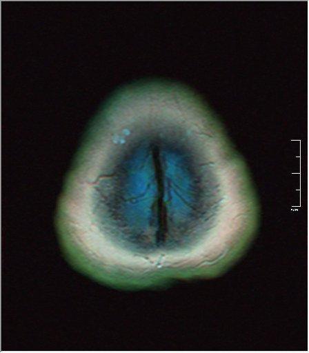 Brain MRI 0230 00.jpg