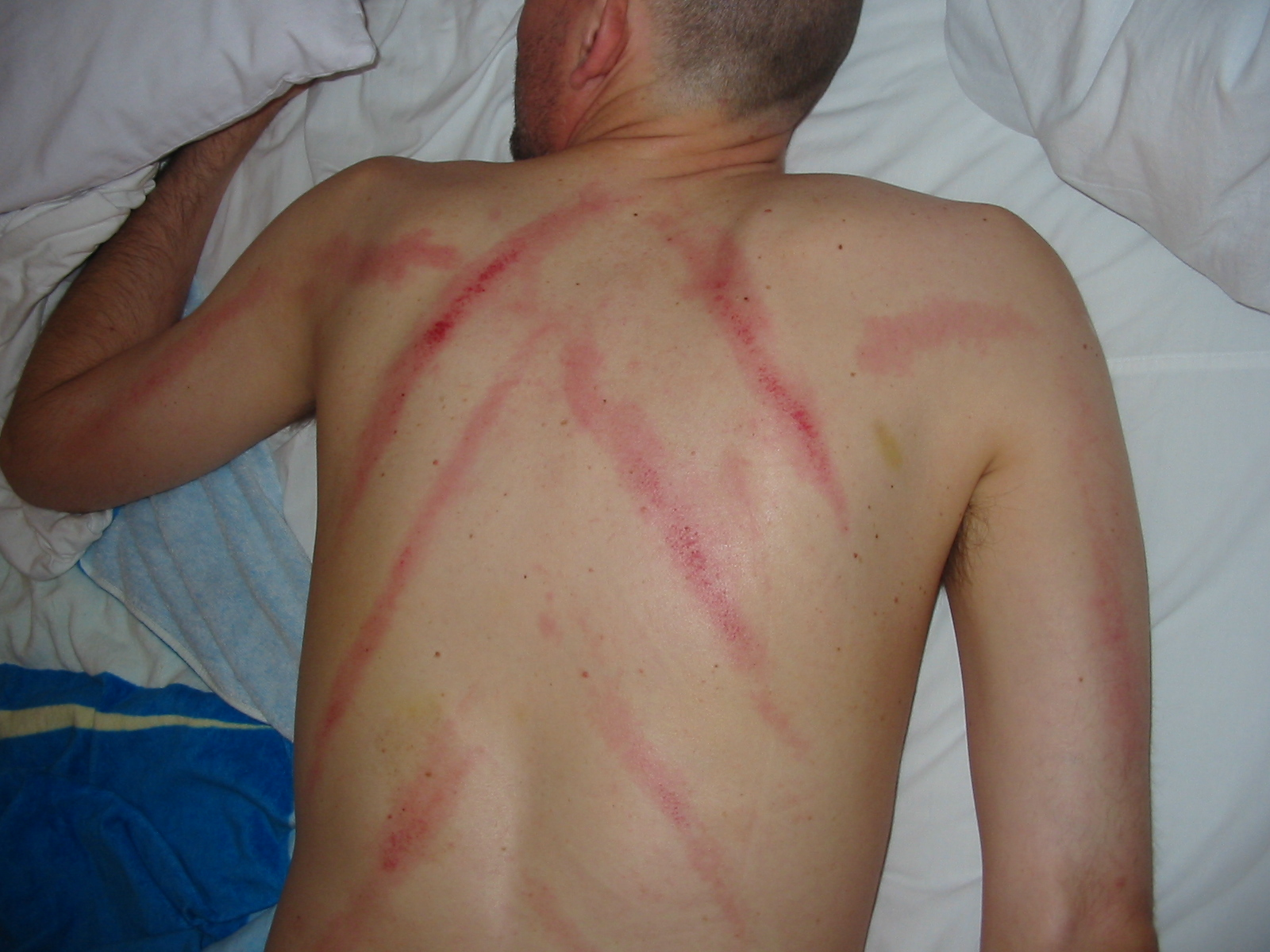File:Gua Sha.jpg - Wikipedia, the free encyclopedia