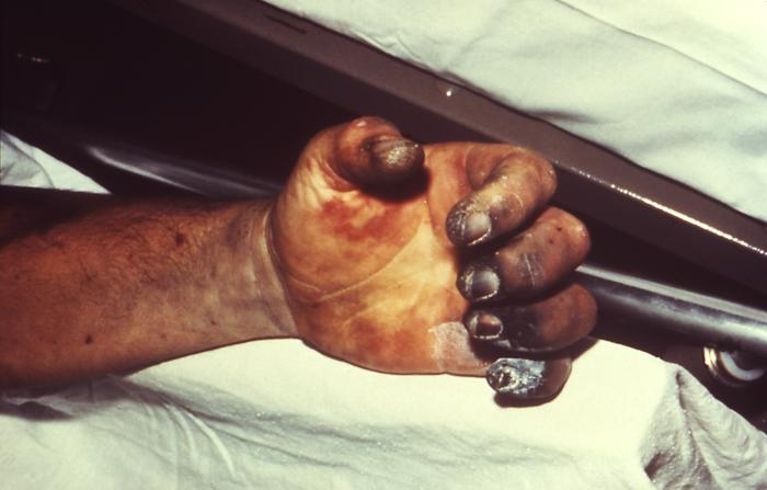 Hand necrosis caused by plague