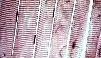 Fotografía del tejido muscular esquelético