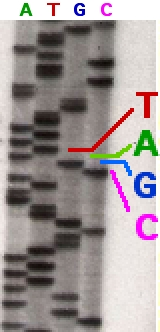 Part of a radioactively labelled sequencing gel