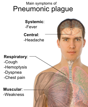 File:Symptoms of pneumonic plague.svg - Wikimedia Commons