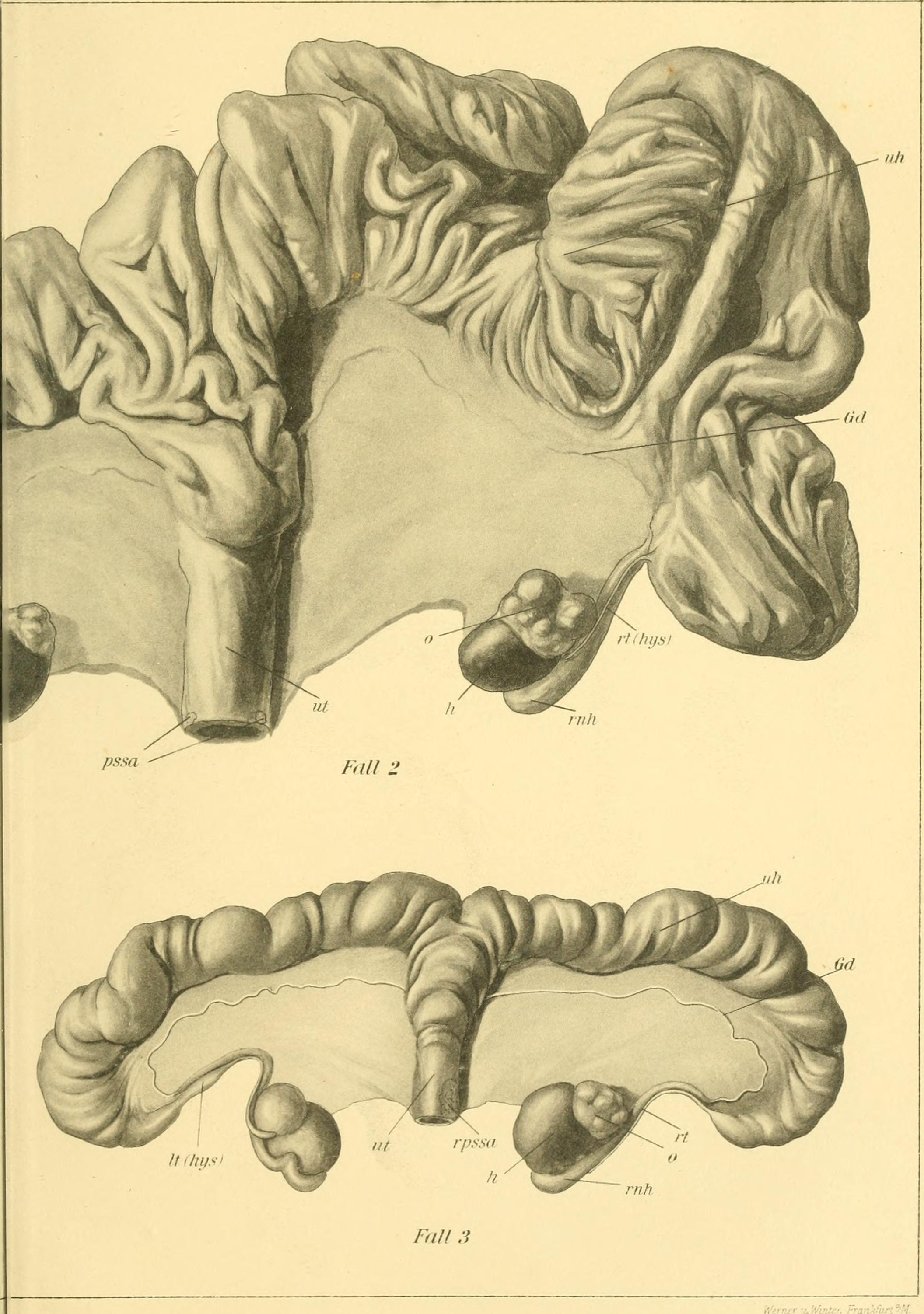 Großartig Makroskopische Anatomie Des Kleinhirns Fotos - Anatomie ...