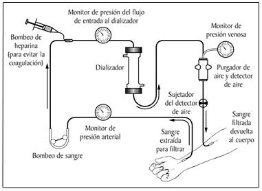 File:Hemodialysis-SP.jpg - Wikimedia Commons