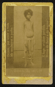 Malnourished child during Brazil's 1877–78 Grande Seca (Great Drought).